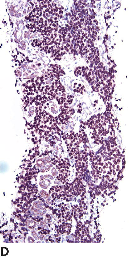 Micrograph of grade III oligodendroglioma of canine displaying nuclear immunoreactivity of almost all tumor cells with Olig2.