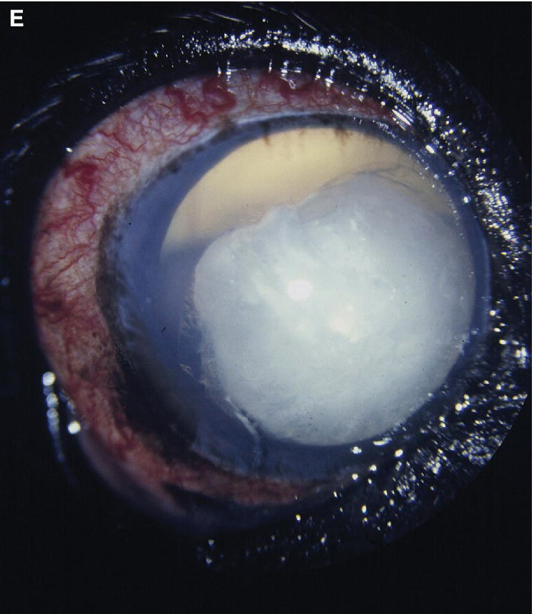 Fundus photo of an American Cocker Spaniel dog with enlarged globe, prominent and congested episcleral blood vessels, dilated pupil, and a cataractous and luxated lens within the anterior chamber.
