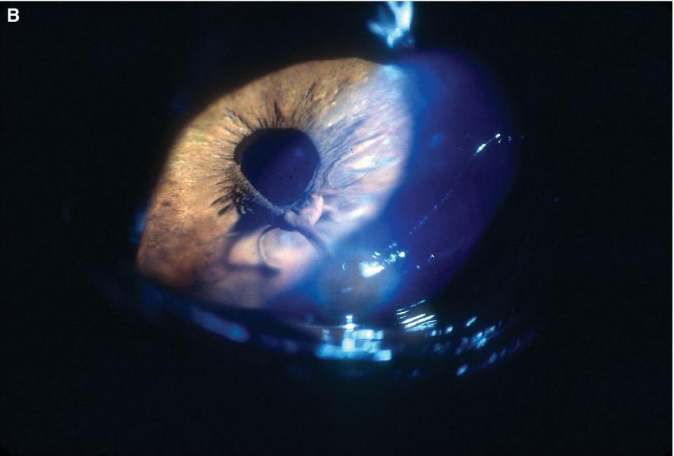 Photo of an eye displaying large PPMs being adherent to the posterior cornea.