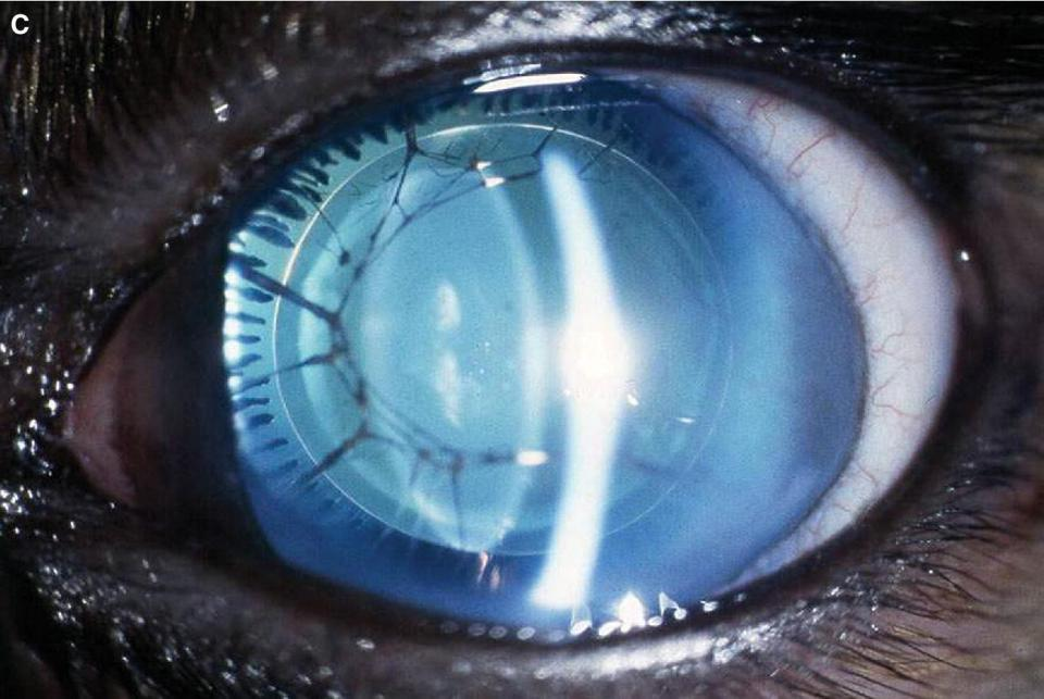 Photo of an eye displaying the developmental absence of the iris with aniridia and cataract.