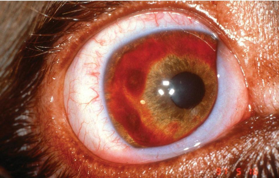 Photo of an eye of a dog displaying anterior uveitis with hemorrhage of the iridal surface infected with Rickettsia rickettsii.