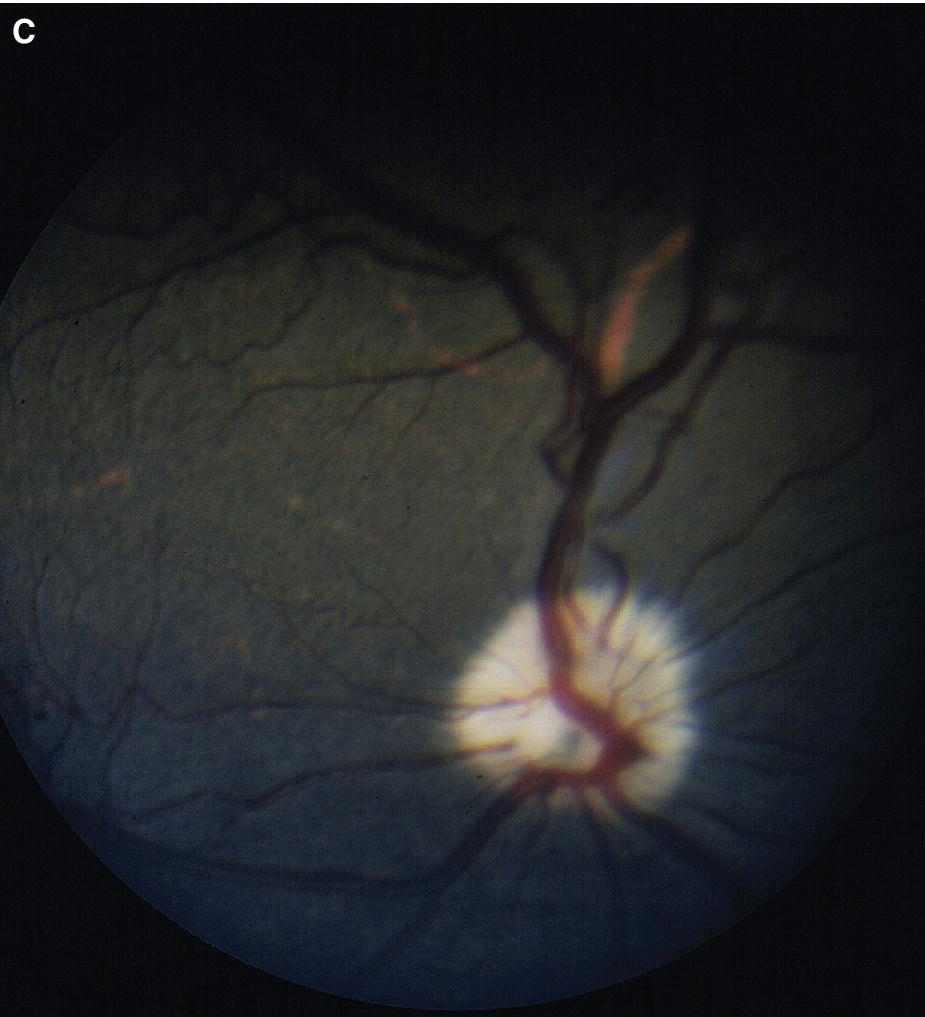 Fundus photograph displaying completely pigmented ocular fundus in a mature Boston Terrier.