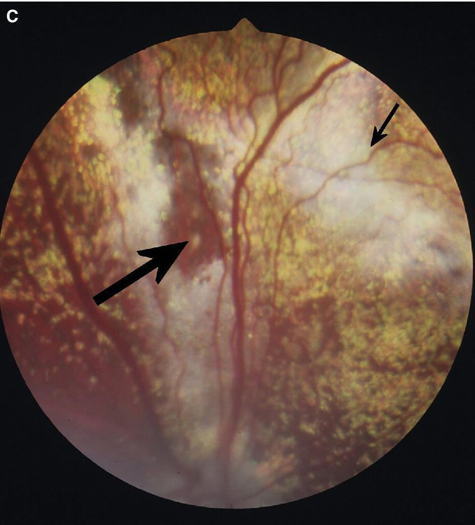 Fundus photograph displaying hyperreflective (small arrow) and pigmented (large arrow) areas in an English Springer Spaniel with geographic retinal dysplasia.
