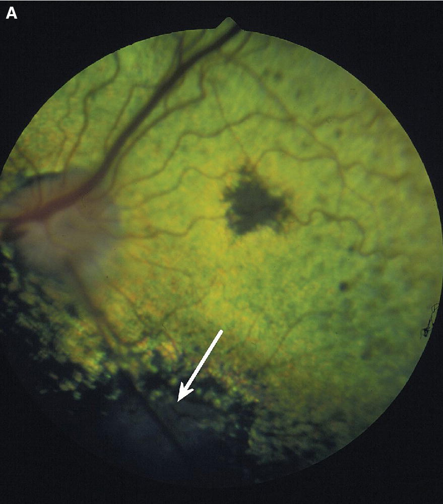 Fundus photo of the dog's eye with early blastomycosis characterized by pigmented foci and granuloma (pointed  by arrows).