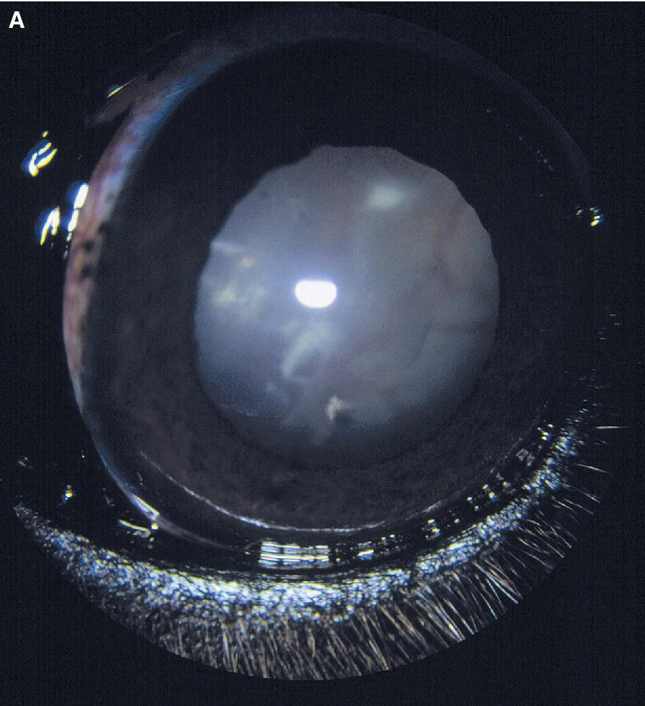 Photo of a dog's eye displaying inflammatory retinal detachment and the dark foci of chorioretinitis caused by cryptococcosis.