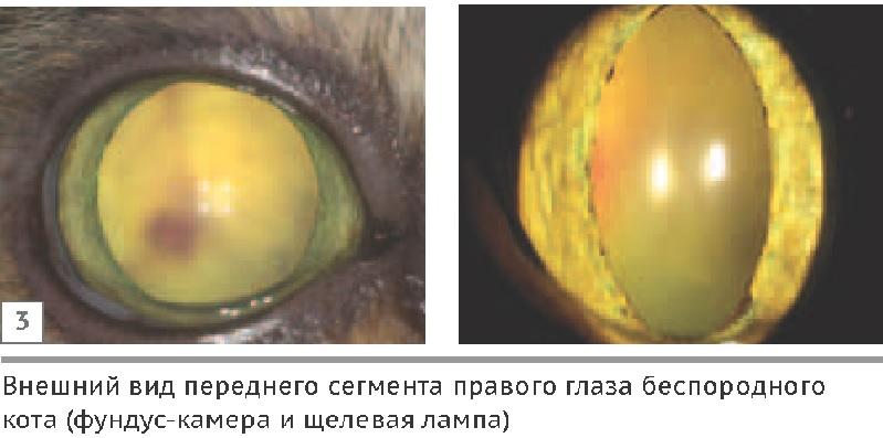 care și-au recâștigat vederea fără operație divizarea vederii