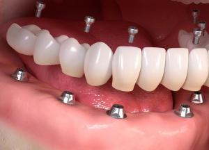 catene dentisti low cost viaggideldente croazia e albania, migliore studio dentistico viaggideldente