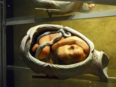 Malformación feto barriga madre Palazzo Poggi Bolonia