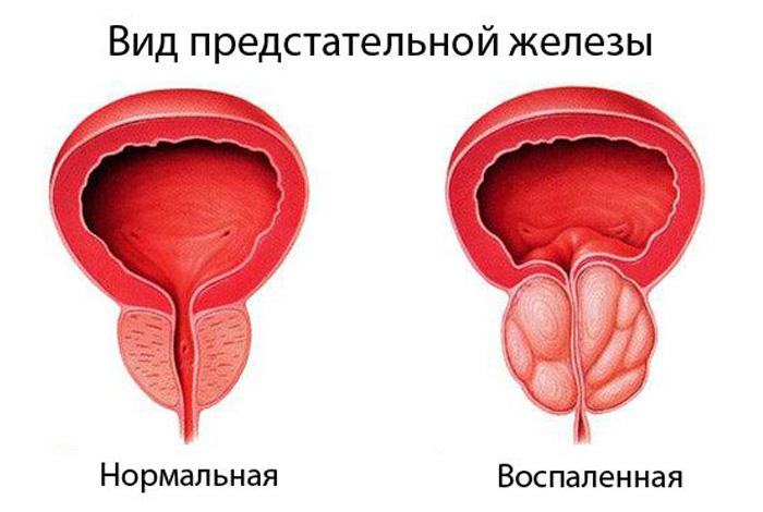 50 metų erekcija dingo varpos minkšta erekcija