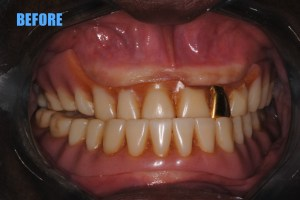 11 before denture