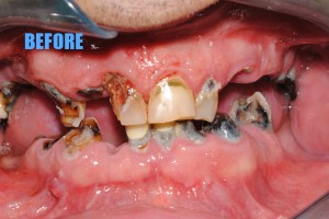 20 denture before