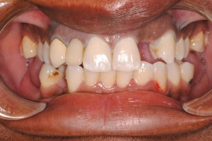 Veneers1 Before