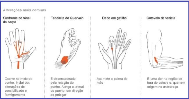 LER - Lesão por Movimento Repetitivo - Alterações mais Comuns da doença