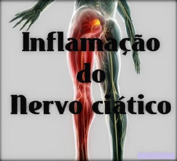 Nervo ciático inflamado - tratamento - Vico Massagista, São José SC, Quiropraxia, Massagem Terapêutica, Massoterapia e Acupuntura. Dor no piriforme