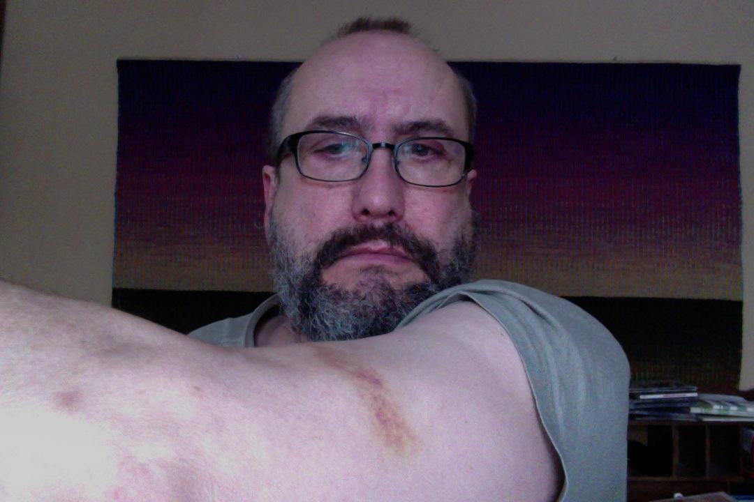 Bruised, missed the last step, fell into the iron steam radiator.