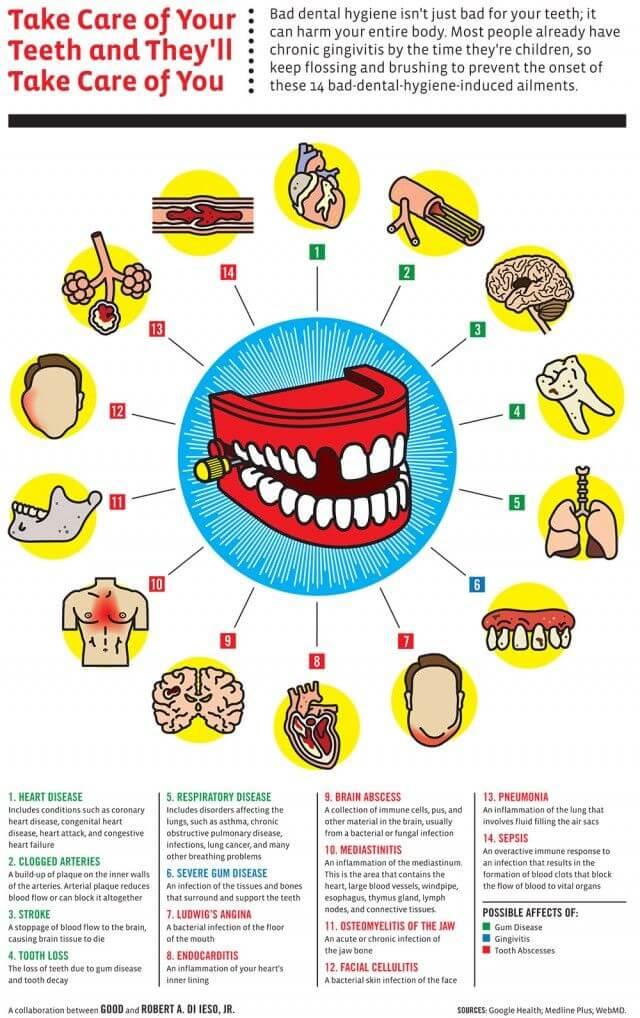 How Oral Health Affects Brain Health