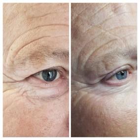 Wrinkle-Sagging-Skin-Removal-Victoria-02