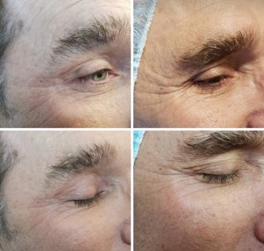 Wrinkle-Sagging-Skin-Removal-Victoria-05