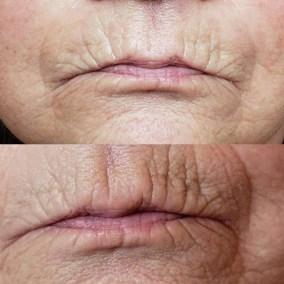 Wrinkle-Sagging-Skin-Removal-Victoria-10