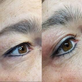 Wrinkle-Sagging-Skin-Removal-Victoria-11