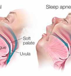 medical illustration of sleep apnea [ 2156 x 1336 Pixel ]