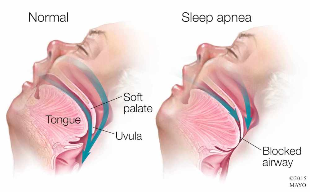 medium resolution of medical illustration of sleep apnea