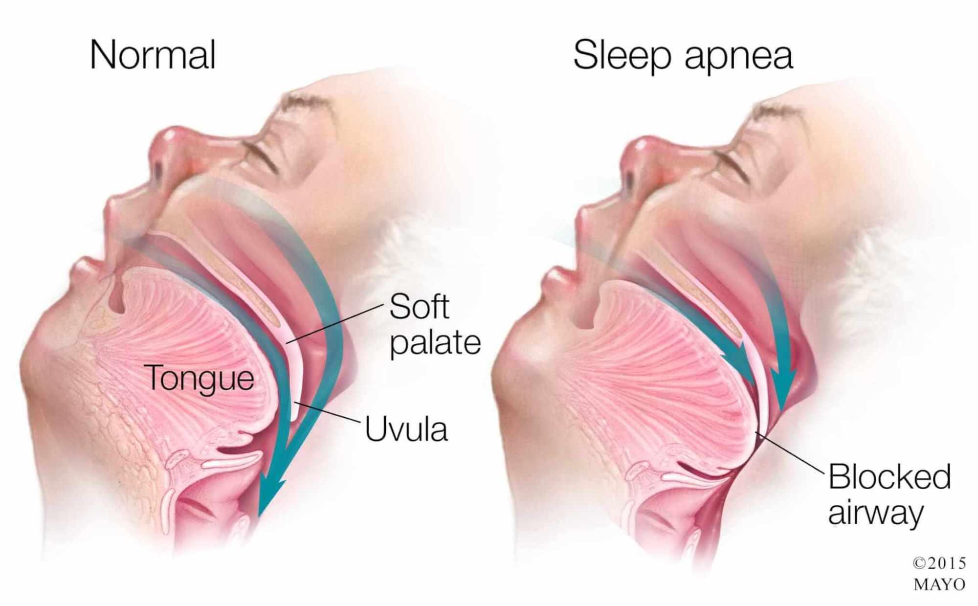 hight resolution of medical illustration of sleep apnea