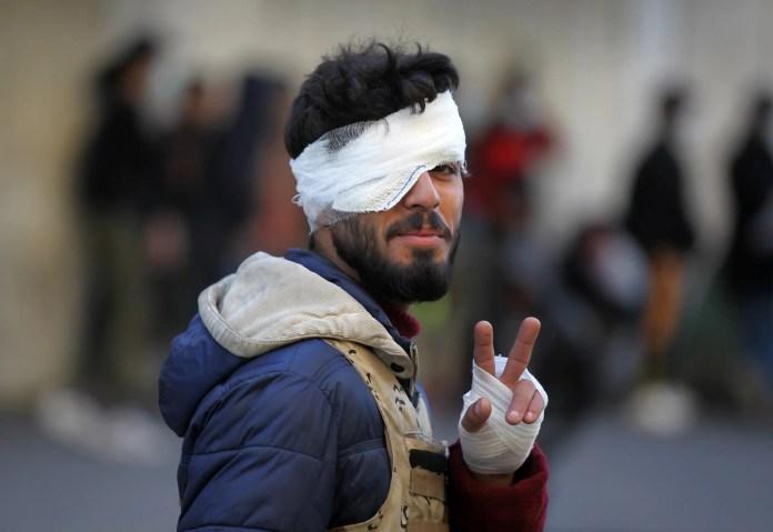An injured Iraqi protester near al-Khilani Square - Baghdad