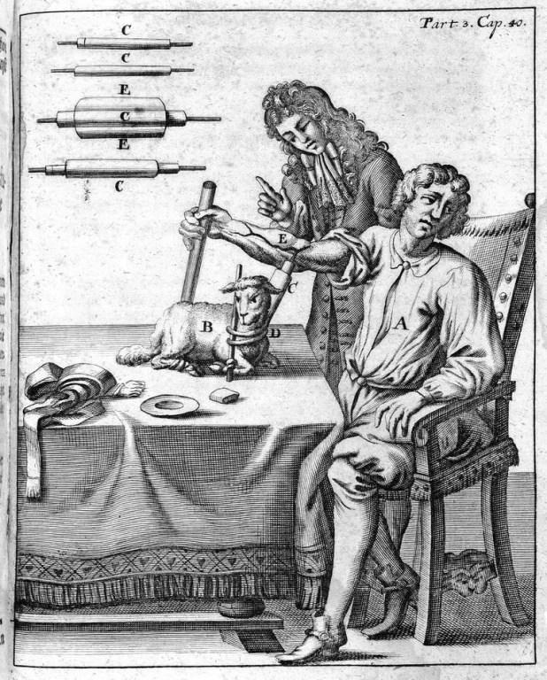رسم تخيلي لعملية نقل دم قديمة بين إنسان و خروف