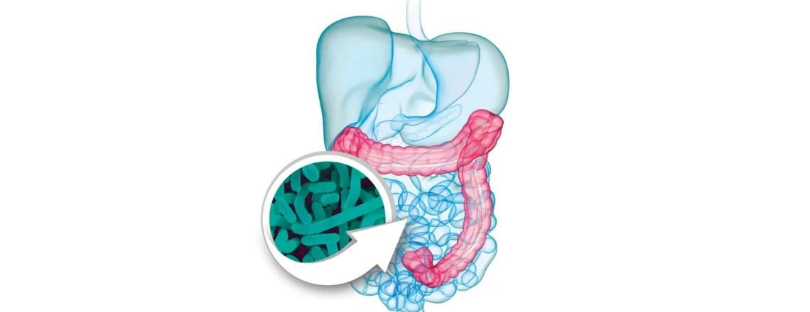 Probióticos, clave de la salud intestinal