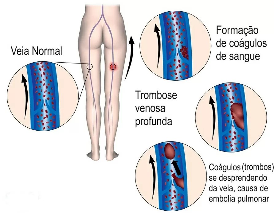 O que pode ajudar a curar úlceras de perna