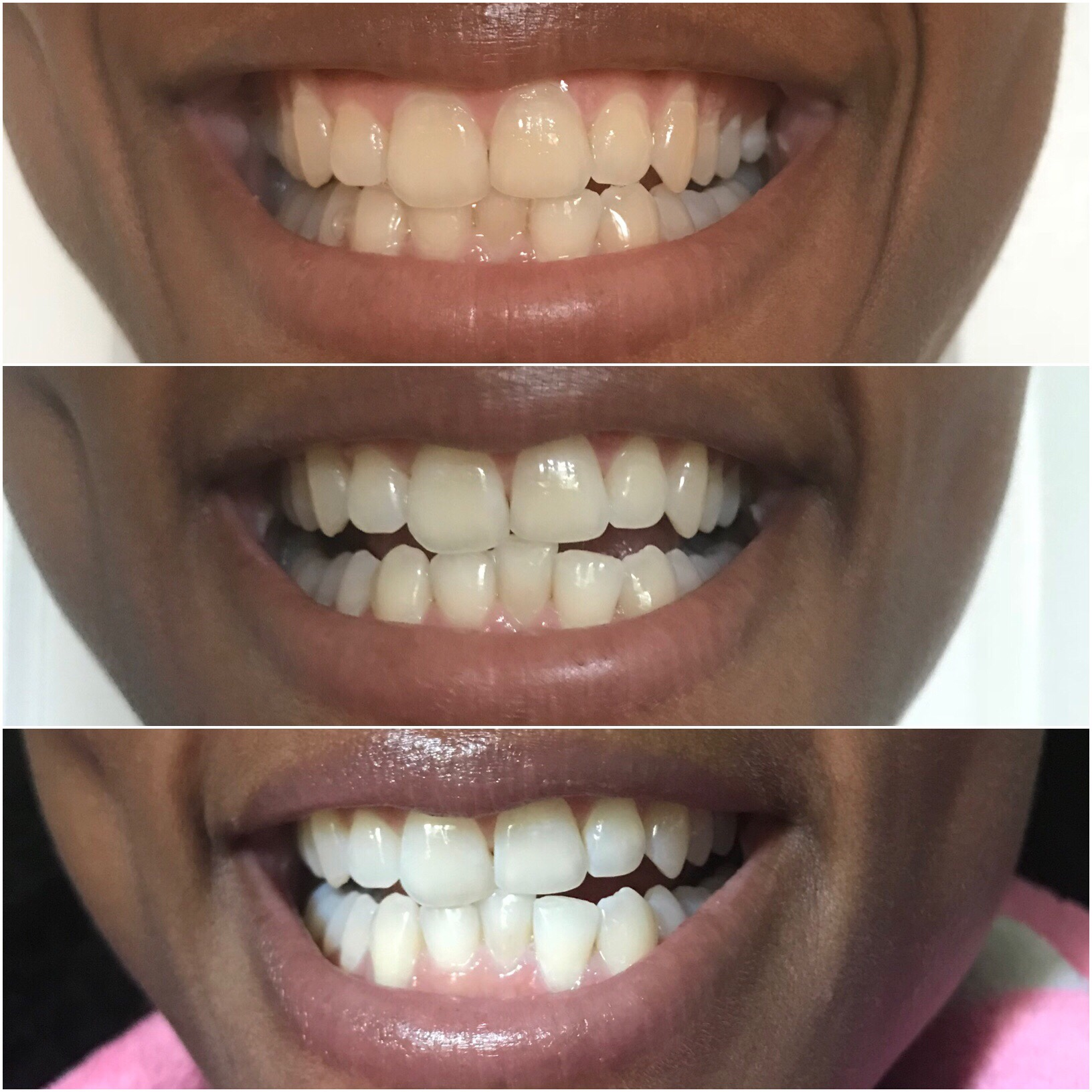 Teeth Whitening with Bianco Smile
