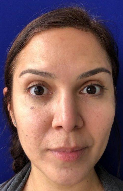 frente de mujer después de aplicacion de botox
