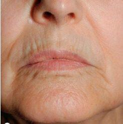 labios antes de tratamiento con láser