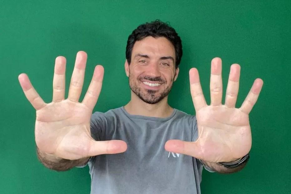Matheus Macêdo mostrando os dez dedos das mãos