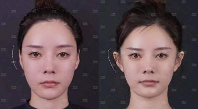 'Telinga Elf' Sedang Trending di China.  Orang Sedang Menjalani Operasi Untuk Mendapatkannya.
