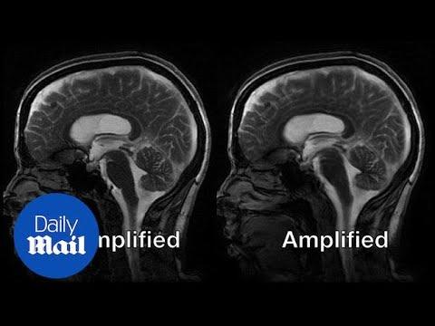 بالفيديو.. تقنية جديدة تصور نبض المخ لأول مرة
