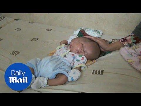 طفل ذو وجهين يولد في إندونيسيا