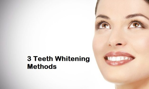 3 Teeth Whitening Methods You Can Benefit From