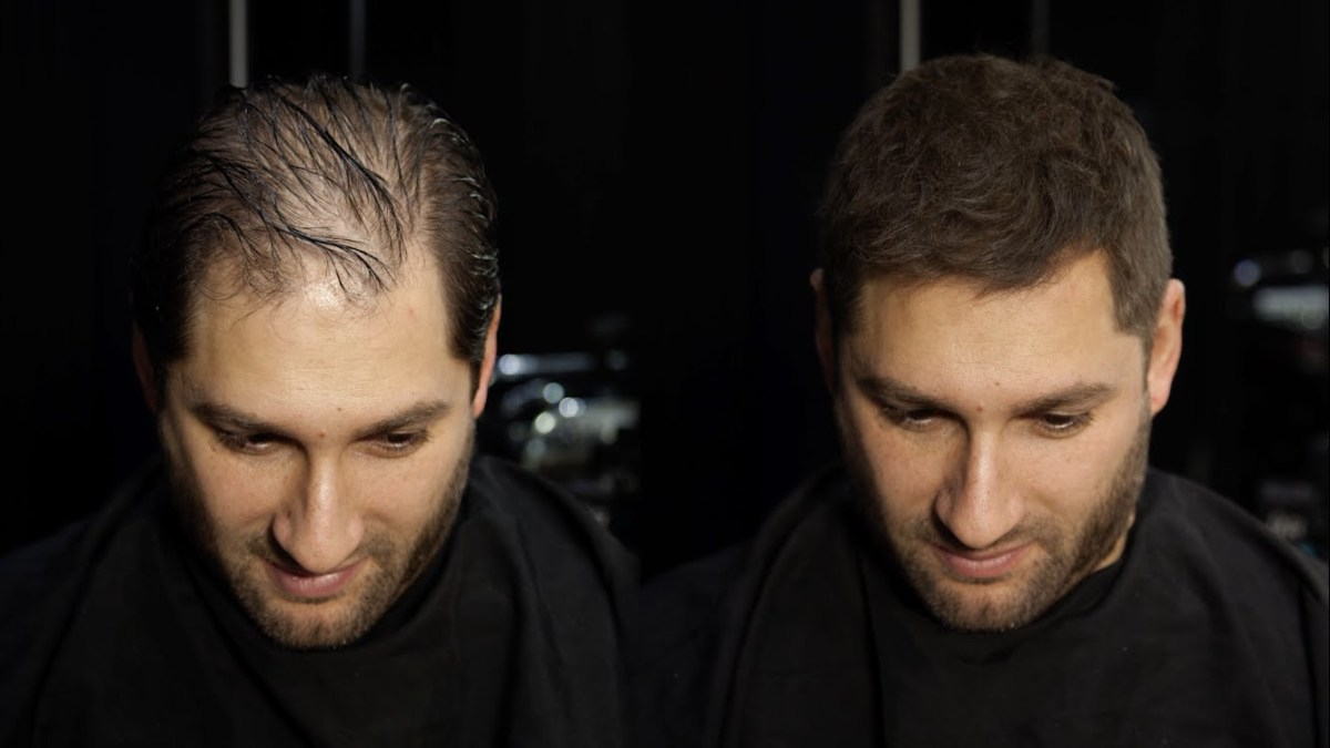 Best Haircuts to Disguise Baldness
