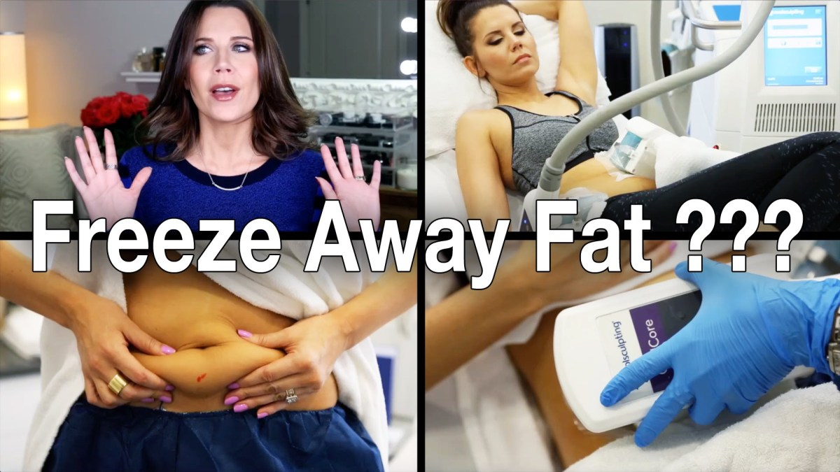 FREEZE AWAY FAT? - Does CoolSculpting Work?