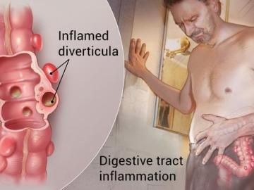 Diverticulitis, VidLyf.com