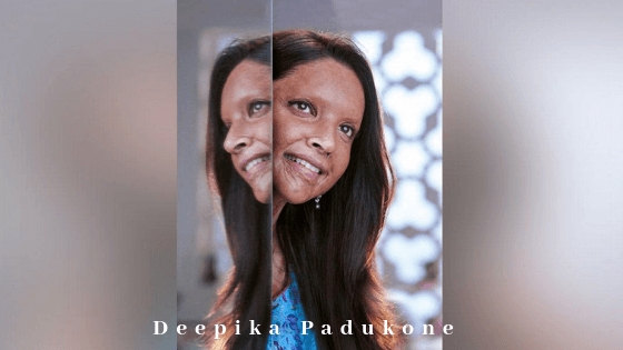 Deepika Padukone  Chhapaak Movie:-role of Acid Attack Survivor