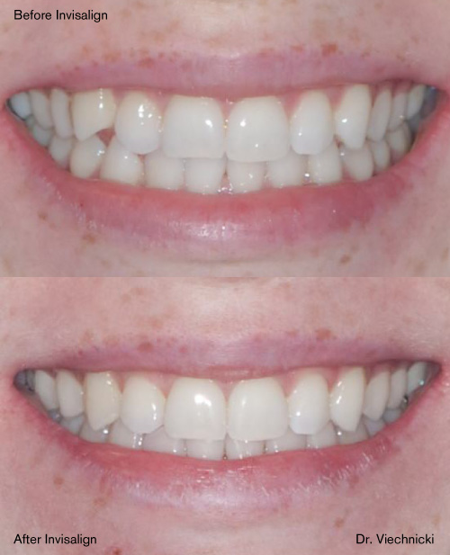 Filing Canine Teeth Before And After : filing, canine, teeth, before, after, Before, After, Invisalign, Crowding, Viechnicki, Orthodontics