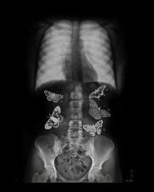 fluturi in stomac
