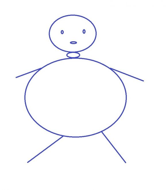 Obezitate grad 2 la copii