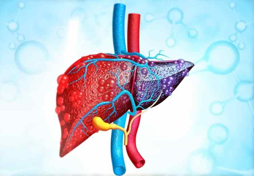 What is Cirrhosis of The Liver Cause, Treatment, Symptoms