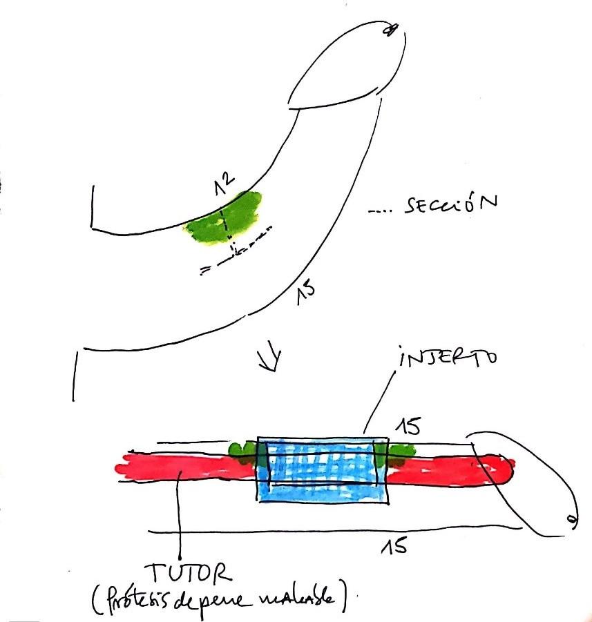 peyronie grafting prótesis