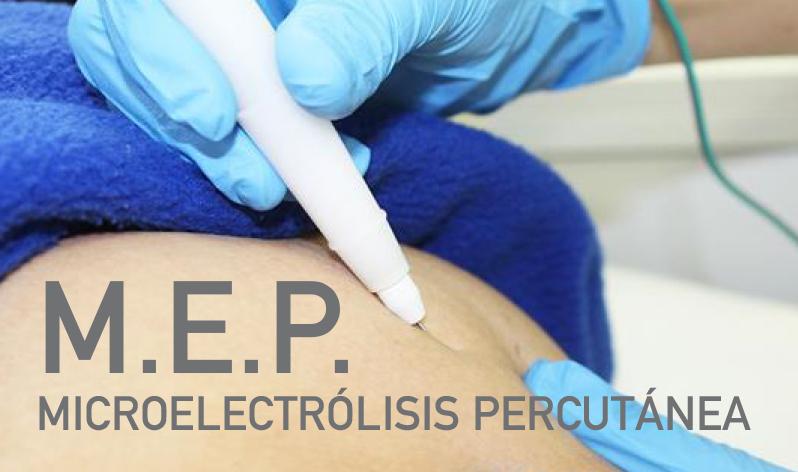 M.E.P. Microelectrólisis Percutánea