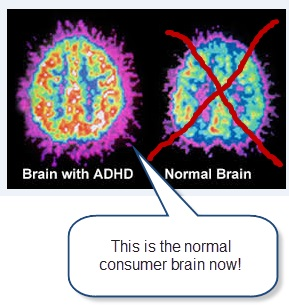 Brain with ADHD